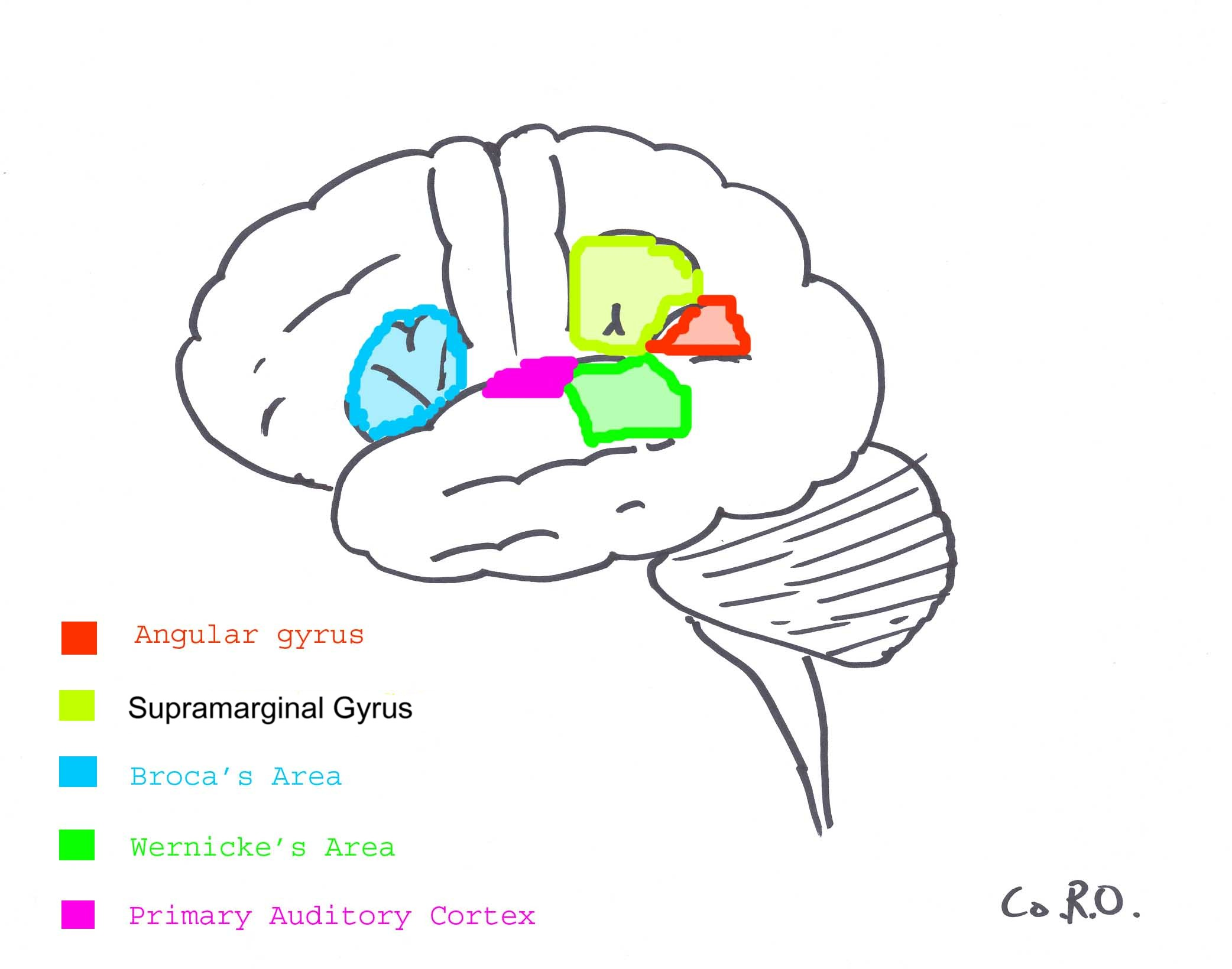 Conduction Aphasia Wernicke's aphasia