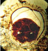 Doushantou Embryo Yinetal2007