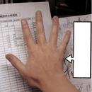 Fractura de la mano de Raiku.PNG